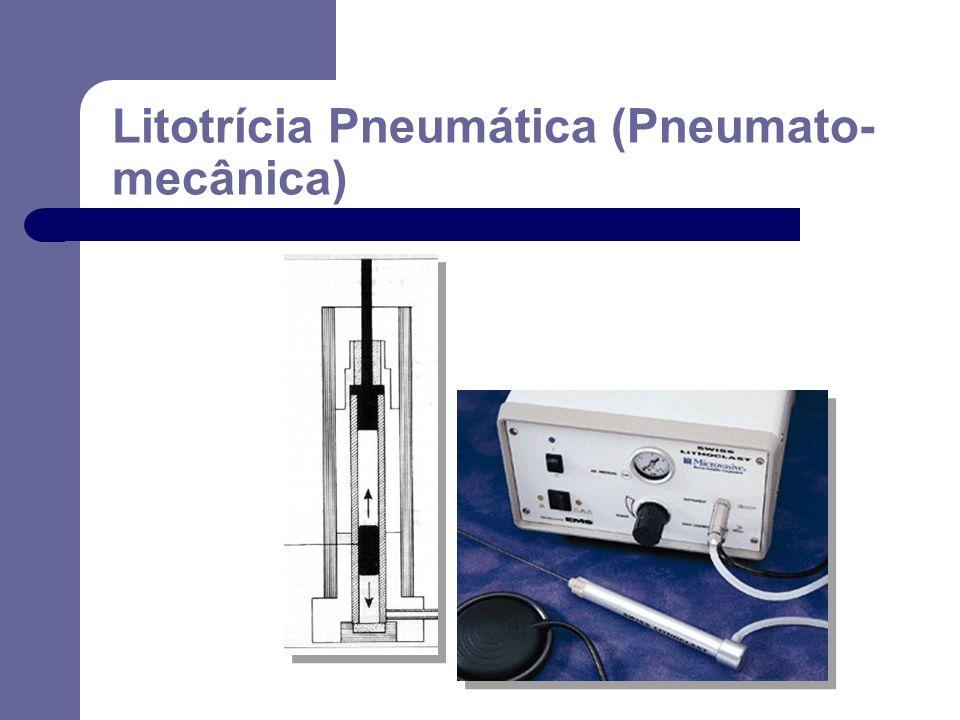 Litotrícia Pneumática (Pneumato- mecânica)