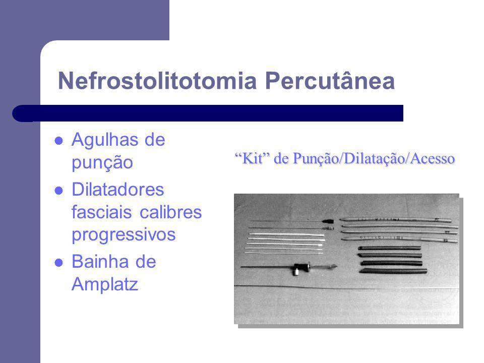 Kit de Punção/Dilatação/Acesso Agulhas de punção Dilatadores fasciais calibres progressivos Bainha de Amplatz Nefrostolitotomia Percutânea