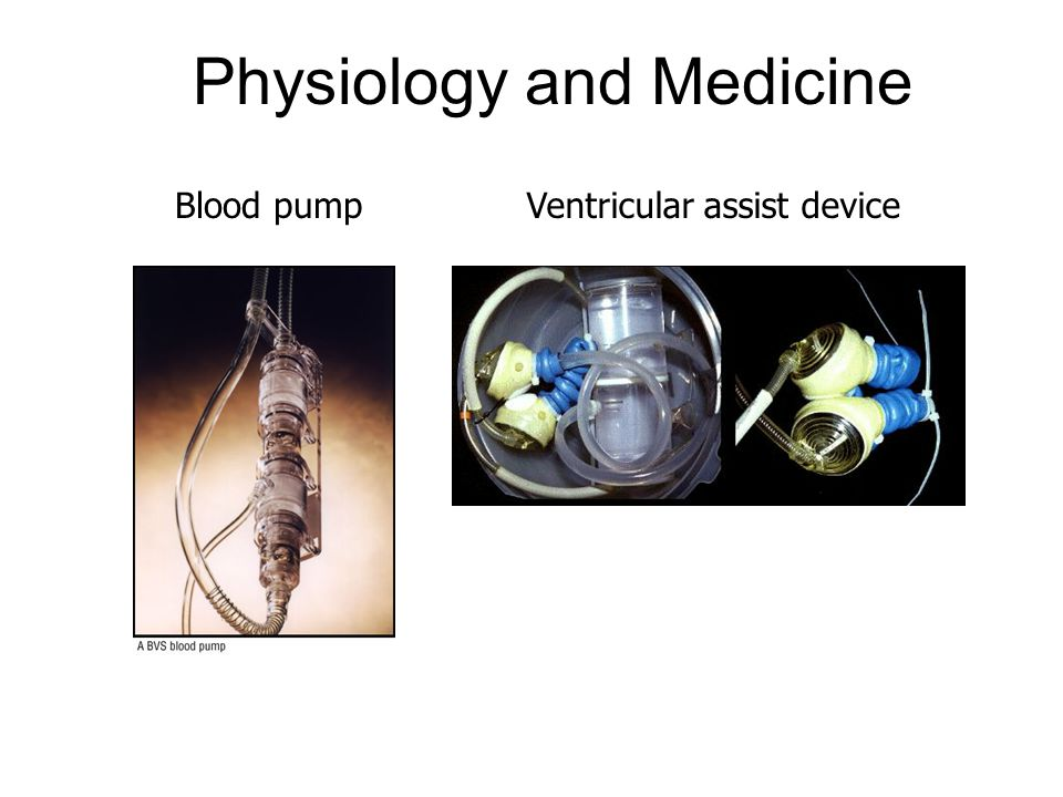 Physiology and Medicine Blood pumpVentricular assist device