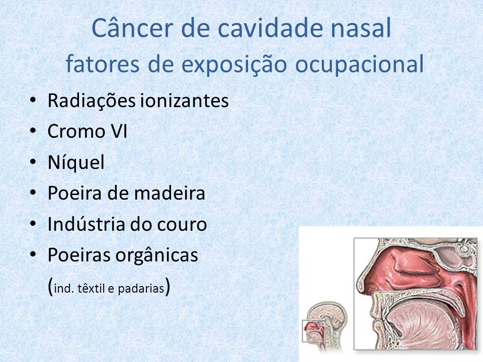 Câncer de cavidade nasal fatores de exposição ocupacional Radiações ionizantes Cromo VI Níquel Poeira de madeira Indústria do couro Poeiras orgânicas