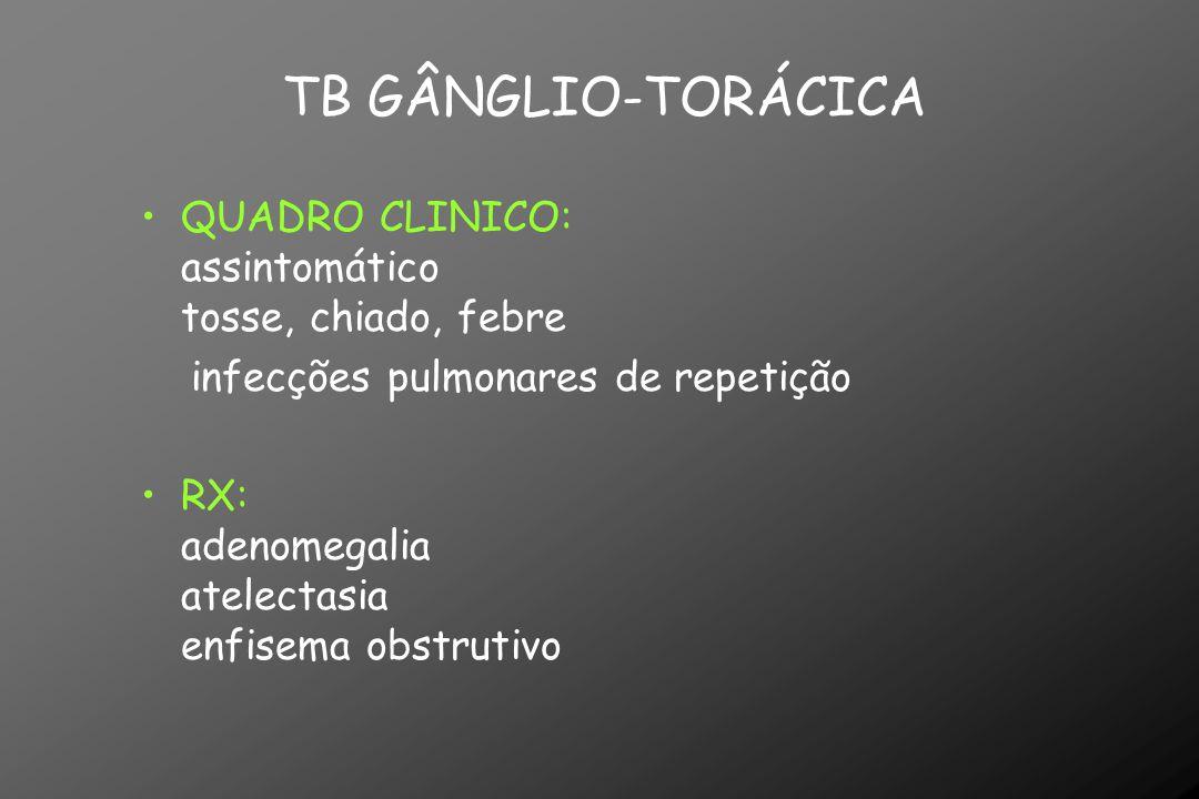QUADRO CLINICO: assintomático tosse, chiado, febre infecções pulmonares de repetição RX: adenomegalia atelectasia enfisema obstrutivo TB GÂNGLIO-TORÁC
