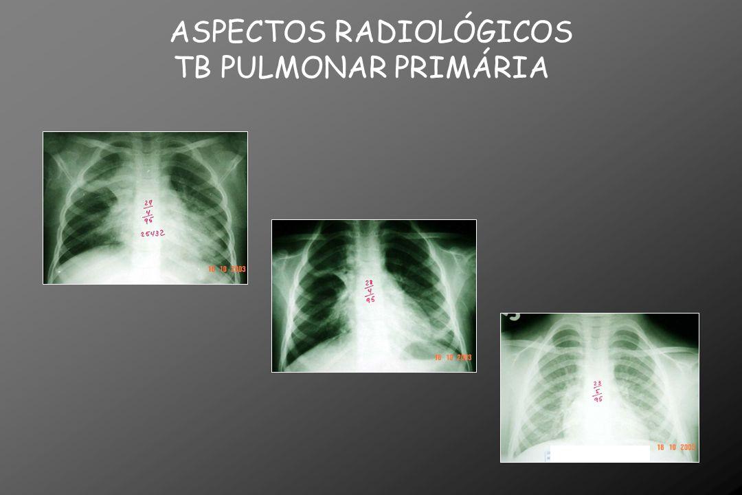 QUIMIOPROFILAXIA Valor da quimioprofilaxia: tuberculose nos dois primeiros anos, após RX de tórax normal em contatos de focos positivos.