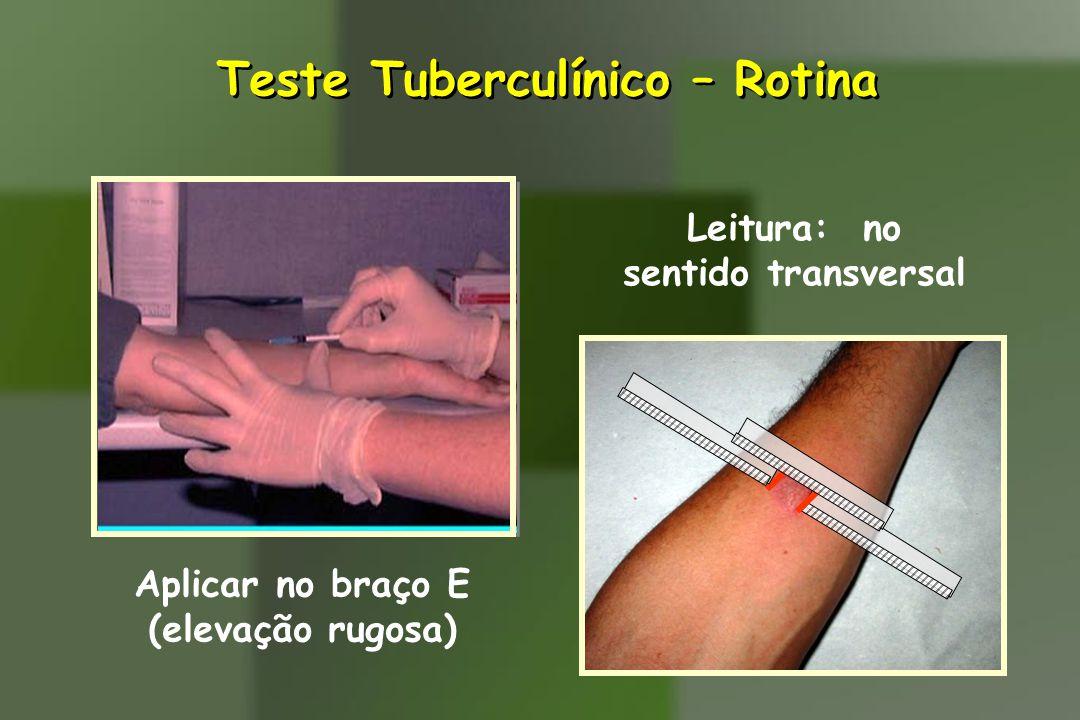Teste Tuberculínico – Rotina Aplicar no braço E (elevação rugosa) Leitura: no sentido transversal