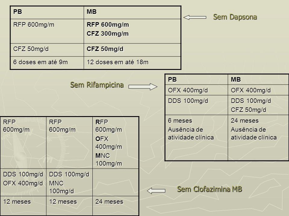 PBMB RFP 600mg/m CFZ 300mg/m CFZ 50mg/d 6 doses em até 9m 12 doses em até 18m Sem Dapsona Sem DapsonaPBMB OFX 400mg/d DDS 100mg/d CFZ 50mg/d 6 meses A