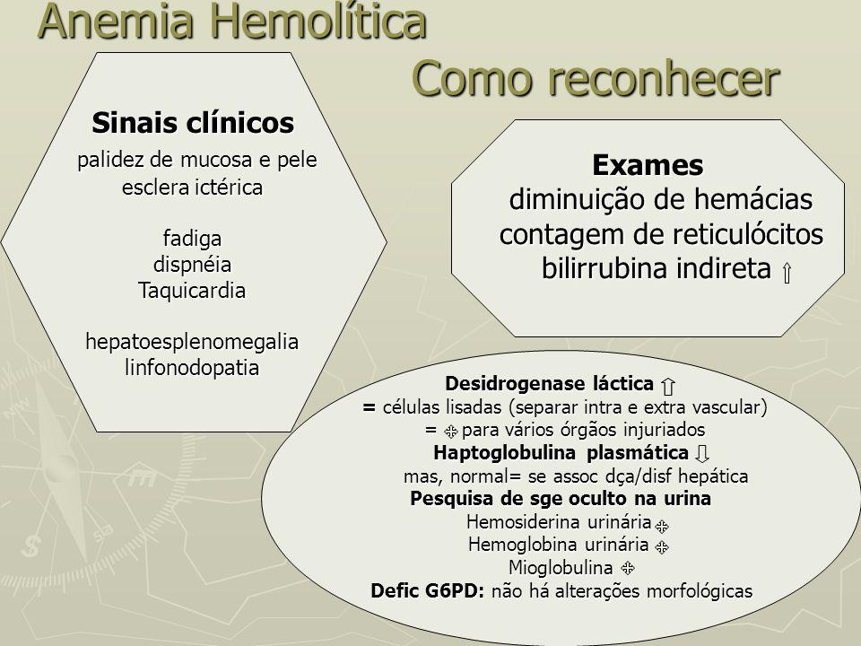 Anemia Hemolítica Como reconhecer Anemia Hemolítica Como reconhecer Sinais clínicos palidez de mucosa e pele palidez de mucosa e pele esclera ictérica