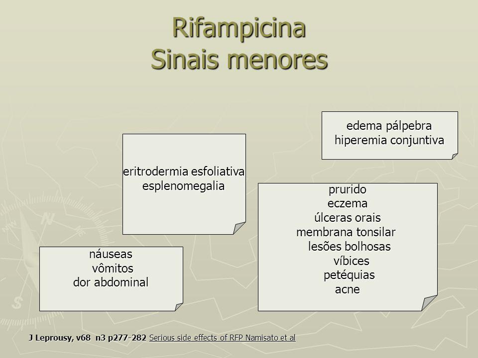 Rifampicina Sinais menores J Leprousy, v68 n3 p277-282 Serious side effects of RFP Namisato et al eritrodermia esfoliativa esplenomegalia náuseas náus