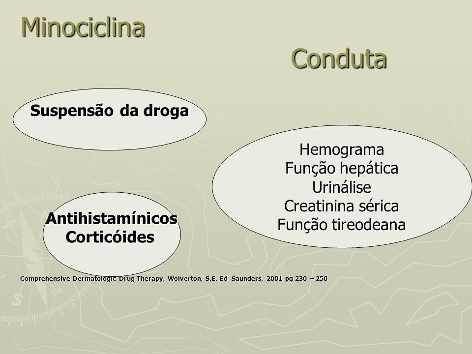 Minociclina Conduta Comprehensive Dermatologic Drug Therapy, Wolverton, S.E. Ed Saunders, 2001 pg 230 – 250 Hemograma Função hepática Urinálise Creati