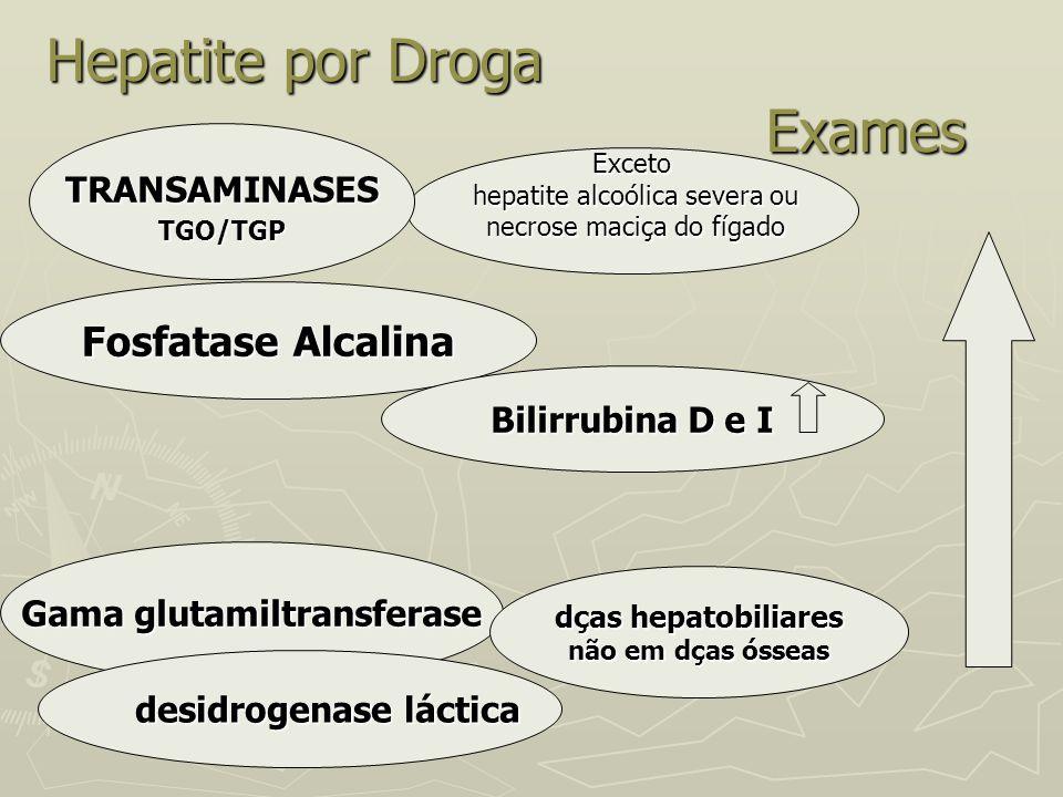 Hepatite por Droga Exames Exceto hepatite alcoólica severa ou hepatite alcoólica severa ou necrose maciça do fígado necrose maciça do fígado TRANSAMIN