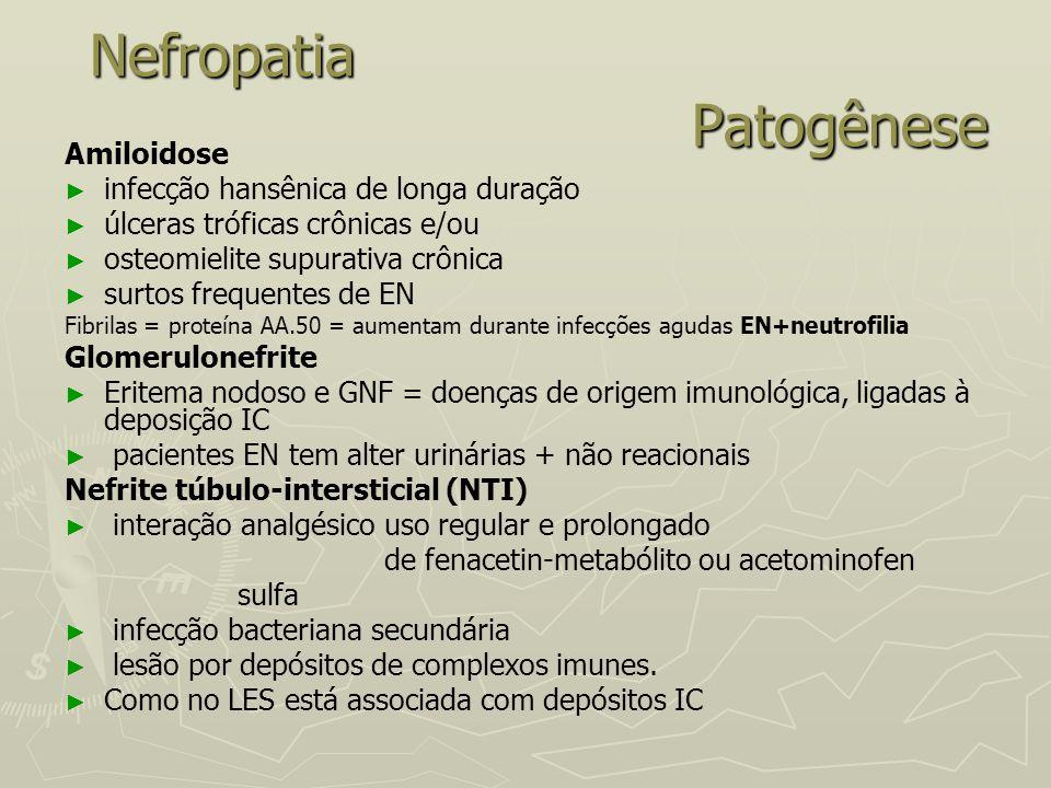 Nefropatia Patogênese Amiloidose ► ► infecção hansênica de longa duração ► ► úlceras tróficas crônicas e/ou ► ► osteomielite supurativa crônica ► ► su