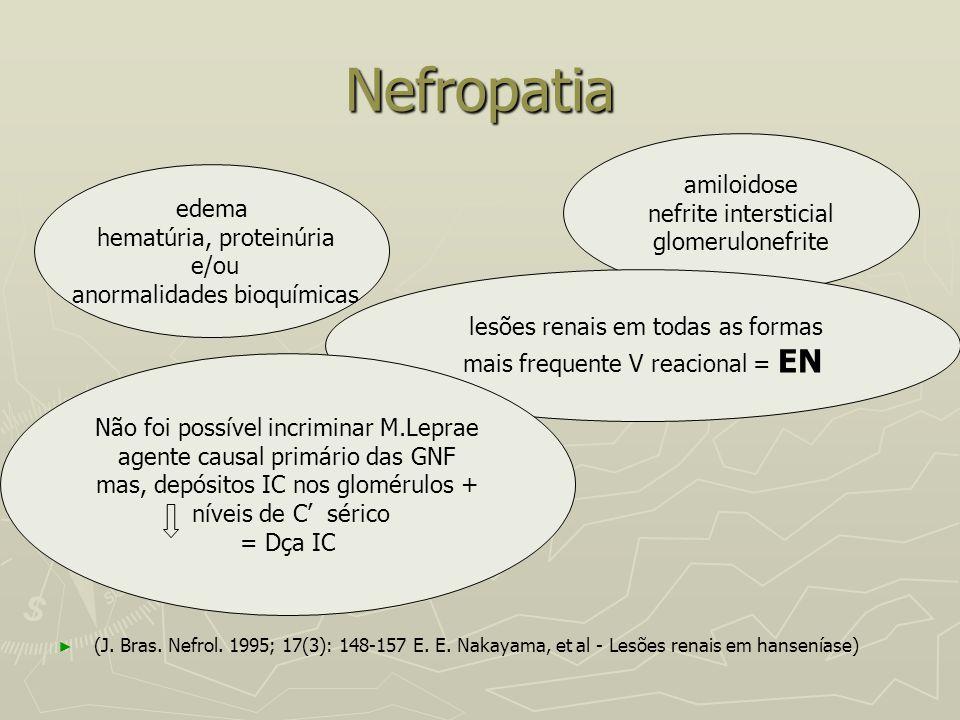 Nefropatia ► ► (J. Bras. Nefrol. 1995; 17(3): 148-157 E. E. Nakayama, et al - Lesões renais em hanseníase) amiloidose nefrite intersticial glomerulone