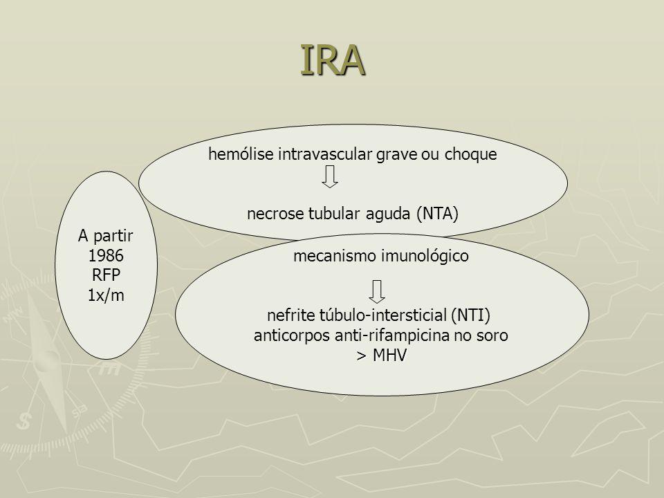 IRA A partir 1986 RFP 1x/m hemólise intravascular grave ou choque necrose tubular aguda (NTA) mecanismo imunológico nefrite túbulo-intersticial (NTI)