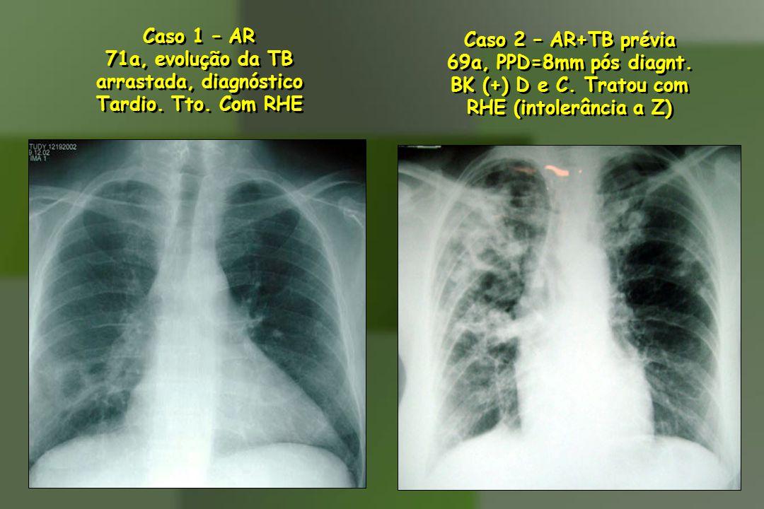 Caso 2 – AR+TB prévia 69a, PPD=8mm pós diagnt. BK (+) D e C. Tratou com RHE (intolerância a Z) Caso 2 – AR+TB prévia 69a, PPD=8mm pós diagnt. BK (+) D