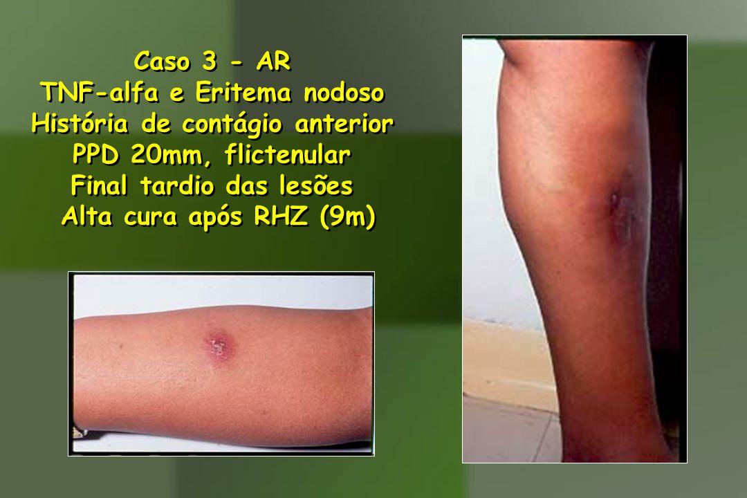 Caso 3 - AR TNF-alfa e Eritema nodoso História de contágio anterior PPD 20mm, flictenular Final tardio das lesões Alta cura após RHZ (9m) Caso 3 - AR