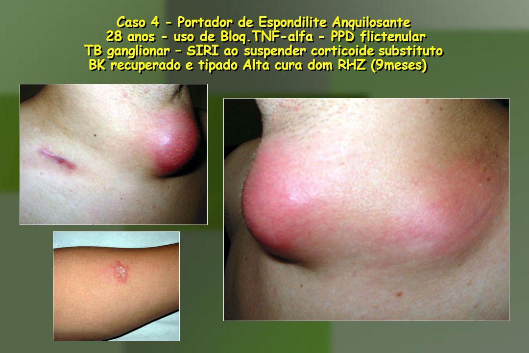 Caso 4 - Portador de Espondilite Anquilosante 28 anos - uso de Bloq.TNF-alfa - PPD flictenular TB ganglionar – SIRI ao suspender corticoide substituto