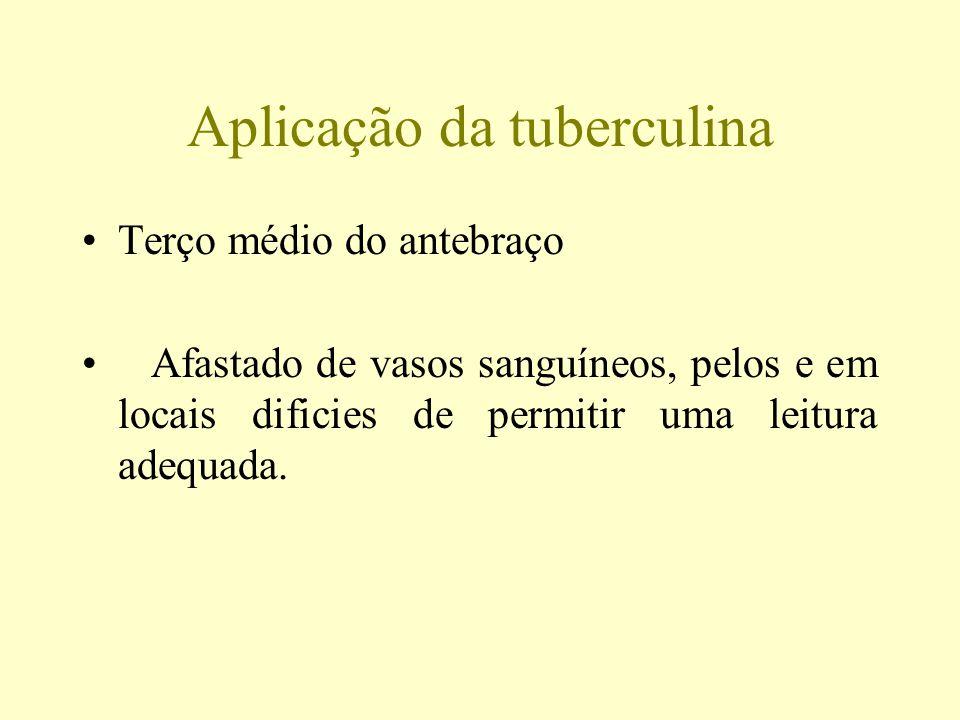 Aplicação da tuberculina Terço médio do antebraço Afastado de vasos sanguíneos, pelos e em locais dificies de permitir uma leitura adequada.
