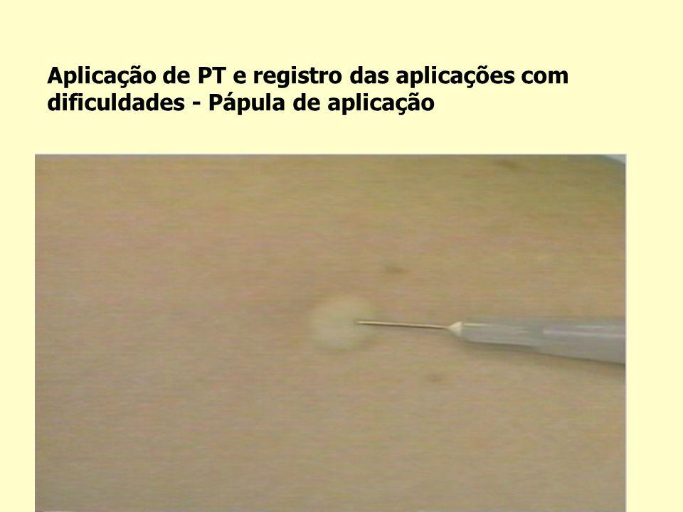 Aplicação de PT e registro das aplicações com dificuldades - Pápula de aplicação