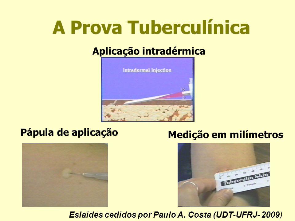 A Prova Tuberculínica Aplicação intradérmica Pápula de aplicação Medição em milímetros Eslaides cedidos por Paulo A. Costa (UDT-UFRJ- 2009)