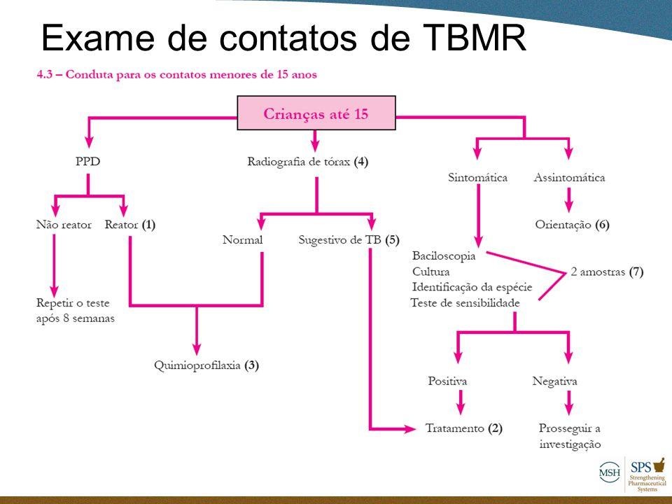 Exame de contatos de TBMR
