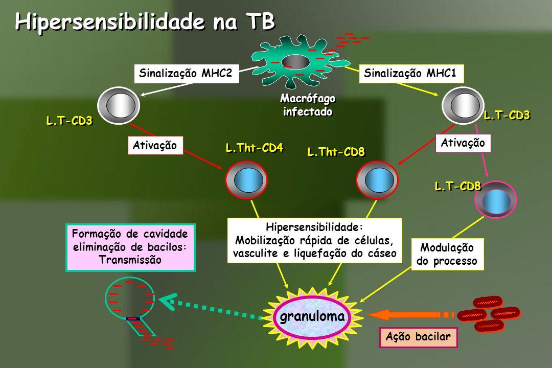 Sinalização MHC1Sinalização MHC2 L.T-CD3 Macrófago infectado Macrófago infectado Hipersensibilidade na TB L.Tht-CD4 Ativação L.Tht-CD8 L.T-CD8 Ativação Hipersensibilidade: Mobilização rápida de células, vasculite e liquefação do cáseo Formação de cavidade eliminação de bacilos: Transmissão Modulação do processo granuloma Ação bacilar