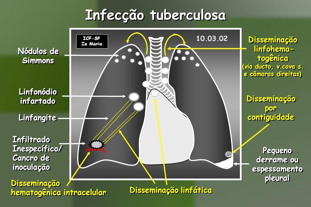 ICF-SP Ze Maria Infecção tuberculosa Disseminação linfática Linfangite Linfonódio infartado Linfonódio infartado Disseminação por contiguidade Disseminação por contiguidade Pequeno derrame ou espessamento pleural Pequeno derrame ou espessamento pleural Nódulos de Simmons Nódulos de Simmons Disseminação linfohema- togênica (via ducto, v.cava s.