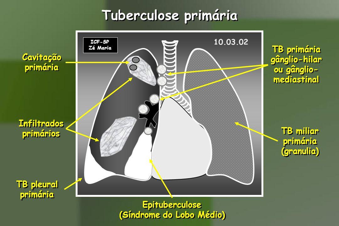 Tuberculose primária ICF-SP Zé Maria Infiltrados primários Infiltrados primários Cavitação primária Cavitação primária Epituberculose (Síndrome do Lobo Médio) Epituberculose (Síndrome do Lobo Médio) TB pleural primária TB pleural primária TB miliar primária (granulia) TB miliar primária (granulia) TB primária gânglio-hilar ou gânglio- mediastinal TB primária gânglio-hilar ou gânglio- mediastinal 10.03.02