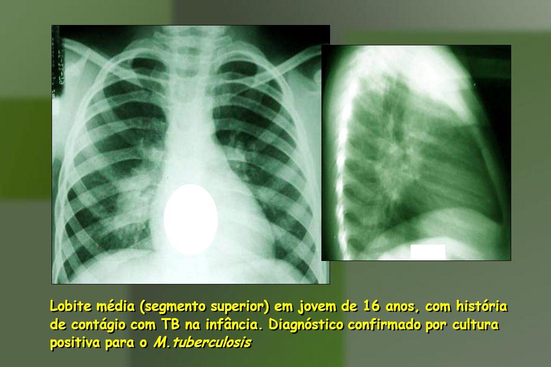 Lobite média (segmento superior) em jovem de 16 anos, com história de contágio com TB na infância.