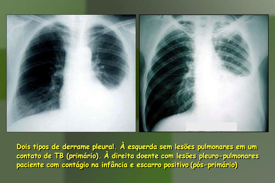 Dois tipos de derrame pleural.À esquerda sem lesões pulmonares em um contato de TB (primário).