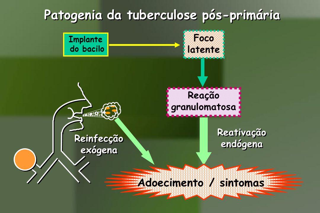 Patogenia da tuberculose pós-primária Implante do bacilo Foco latente Reinfecção exógena Reinfecção exógena Reativação endógena Reativação endógena Adoecimento / sintomas Reação granulomatosa