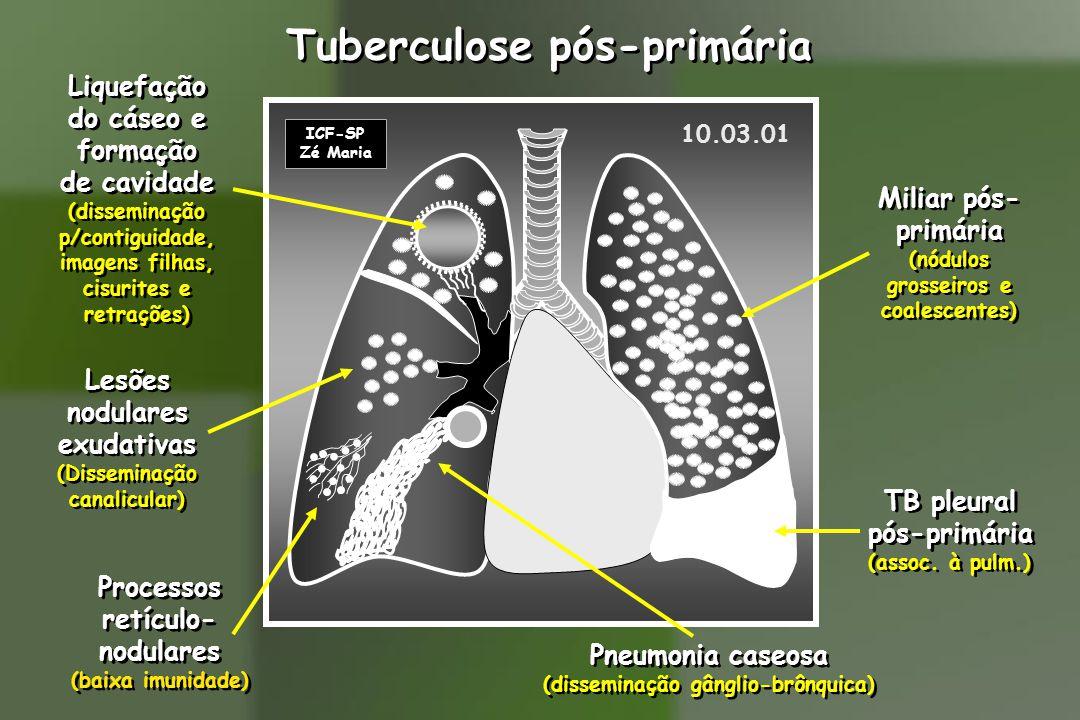 10.03.01 ICF-SP Zé Maria Lesões nodulares exudativas (Disseminação canalicular) Lesões nodulares exudativas (Disseminação canalicular) Pneumonia caseosa (disseminação gânglio-brônquica) Pneumonia caseosa (disseminação gânglio-brônquica) TB pleural pós-primária (assoc.