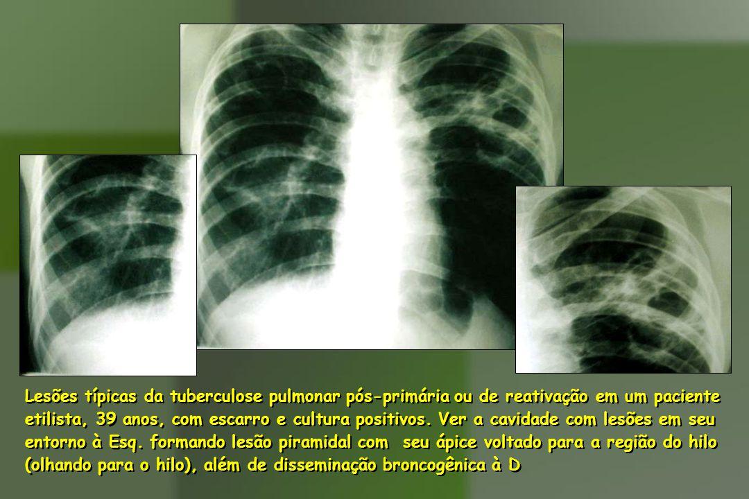 Lesões típicas da tuberculose pulmonar pós-primária ou de reativação em um paciente etilista, 39 anos, com escarro e cultura positivos.