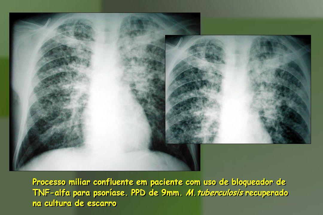 Processo miliar confluente em paciente com uso de bloqueador de TNF-alfa para psoríase.