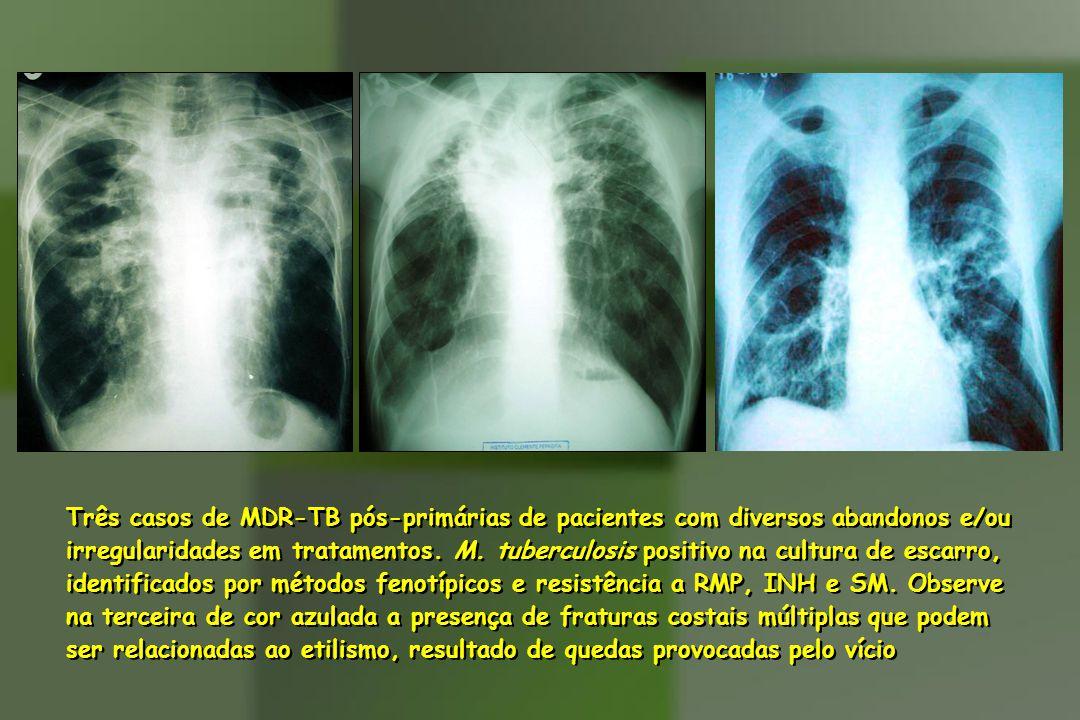 Três casos de MDR-TB pós-primárias de pacientes com diversos abandonos e/ou irregularidades em tratamentos.