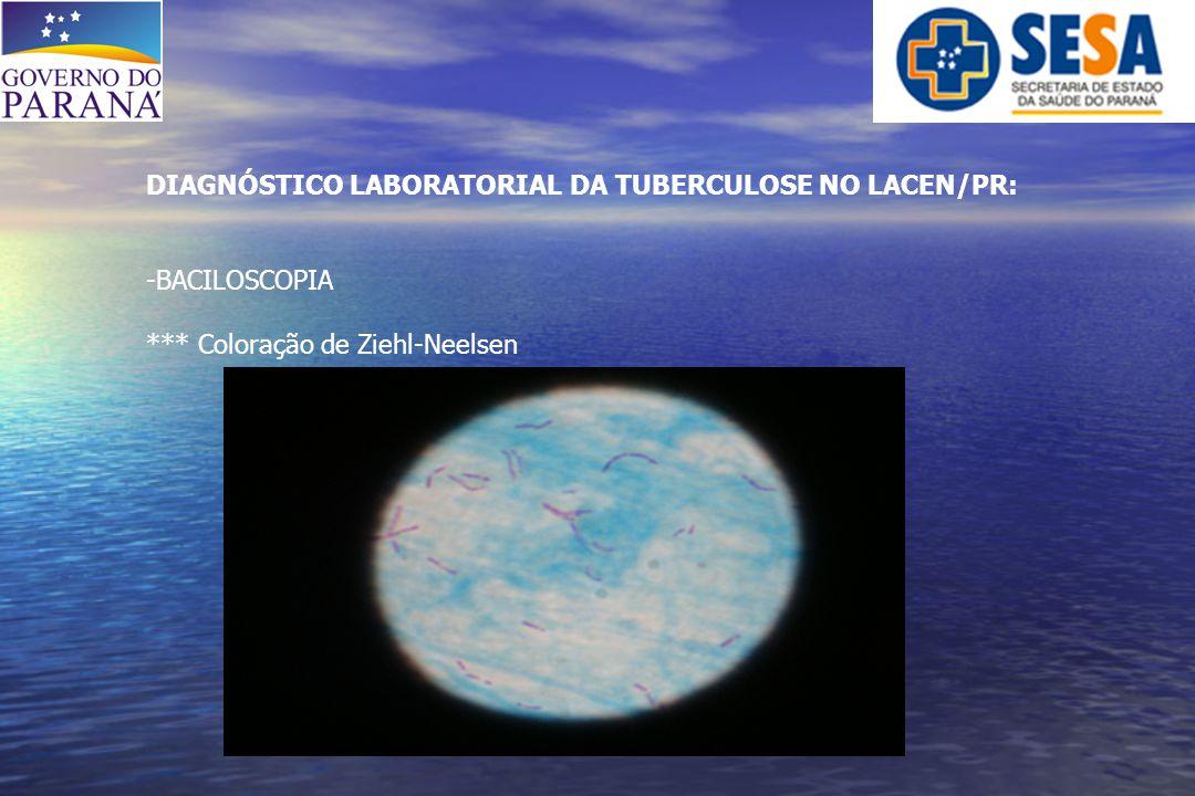DIAGNÓSTICO LABORATORIAL DA TUBERCULOSE NO LACEN/PR: -BACILOSCOPIA *** Coloração de Ziehl-Neelsen