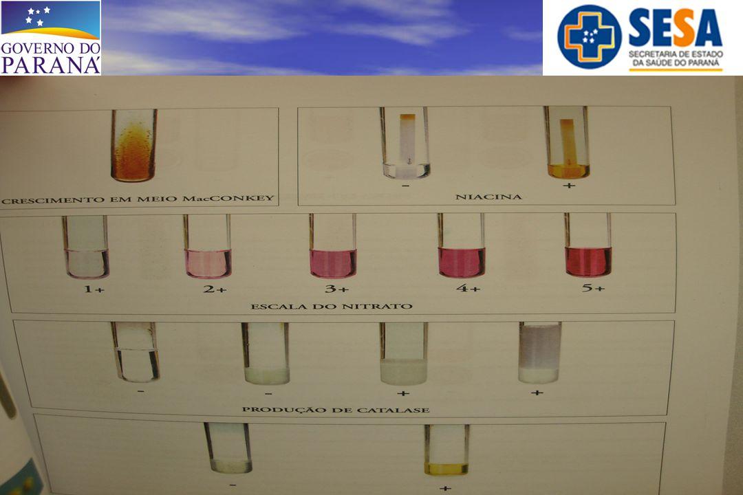 -Material: *** Escarro = 197 (92%) 6 MAC → Resistente a todas as drogas testadas 191 M.