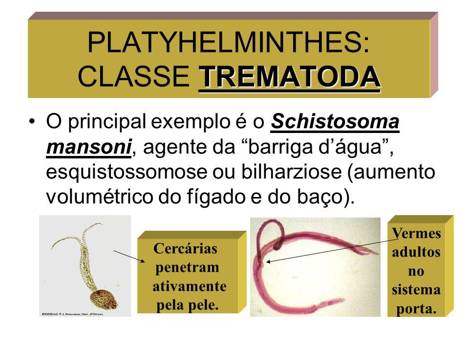 """TREMATODA PLATYHELMINTHES: CLASSE TREMATODA O principal exemplo é o Schistosoma mansoni, agente da """"barriga d'água"""", esquistossomose ou bilharziose (a"""
