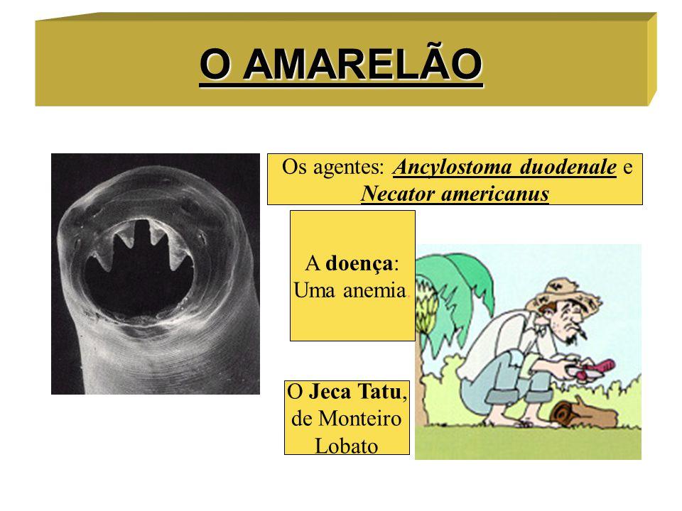 O AMARELÃO Os agentes: Ancylostoma duodenale e Necator americanus A doença: Uma anemia. O Jeca Tatu, de Monteiro Lobato
