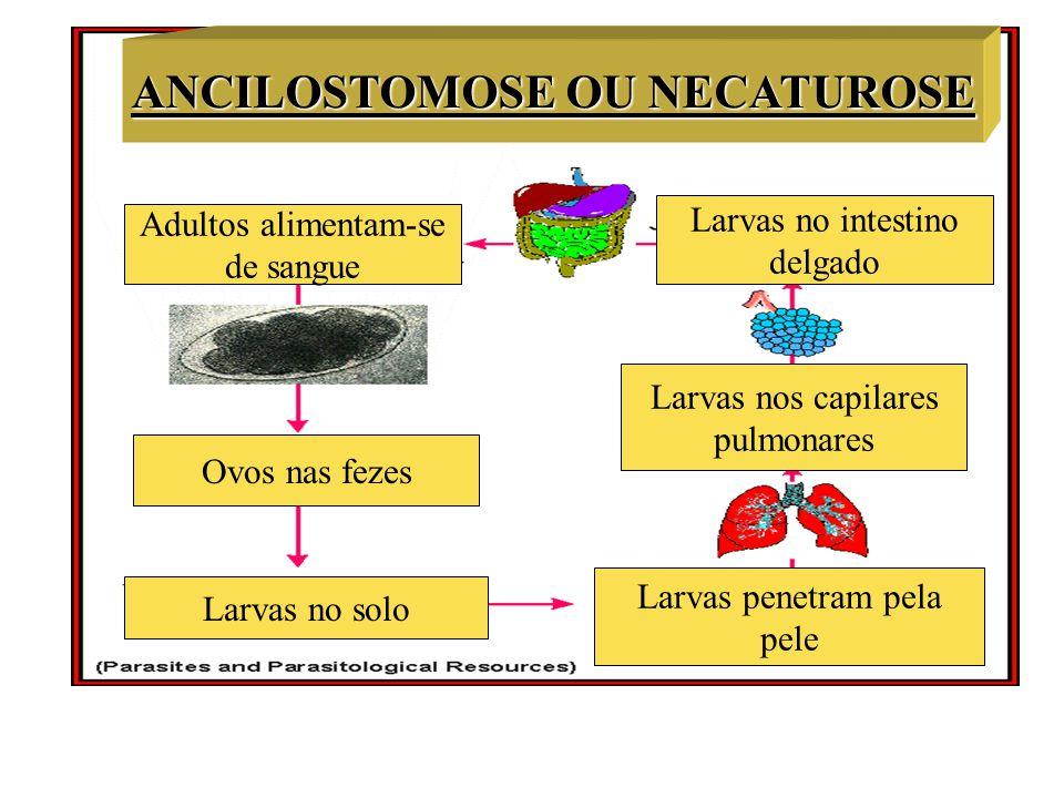 ANCILOSTOMOSE OU NECATUROSE Larvas no solo Ovos nas fezes Adultos alimentam-se de sangue Larvas no intestino delgado Larvas nos capilares pulmonares L