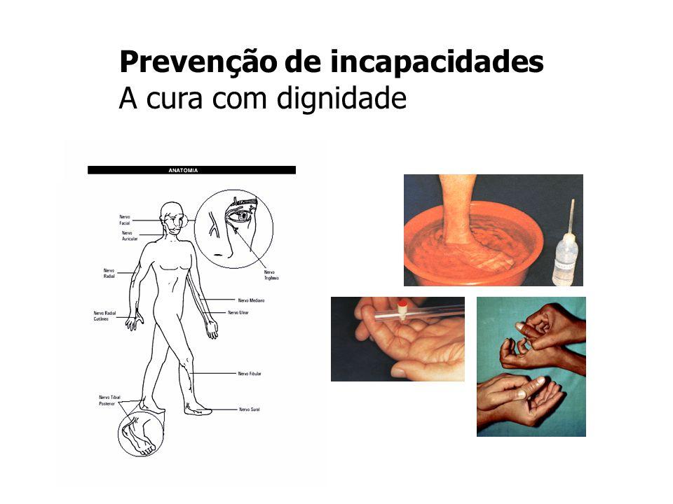 Prevenção de incapacidades A cura com dignidade