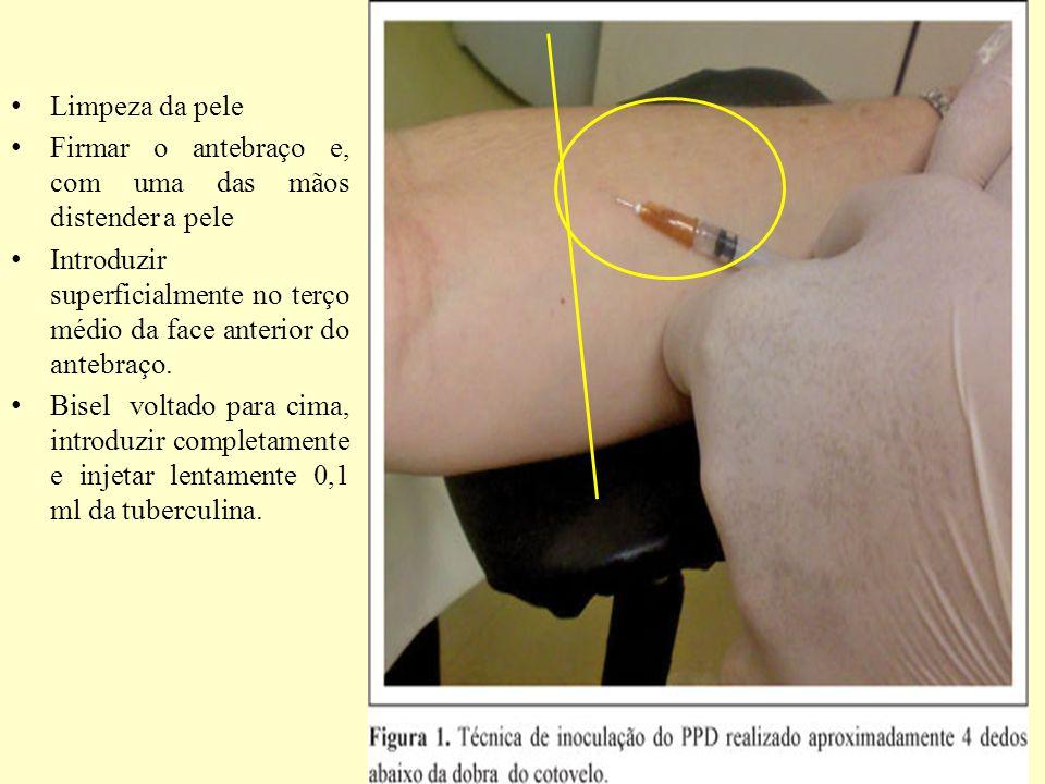Limpeza da pele Firmar o antebraço e, com uma das mãos distender a pele Introduzir superficialmente no terço médio da face anterior do antebraço.