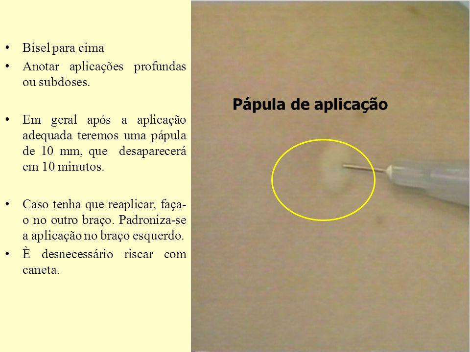 Pápula de aplicação Bisel para cima Anotar aplicações profundas ou subdoses. Em geral após a aplicação adequada teremos uma pápula de 10 mm, que desap