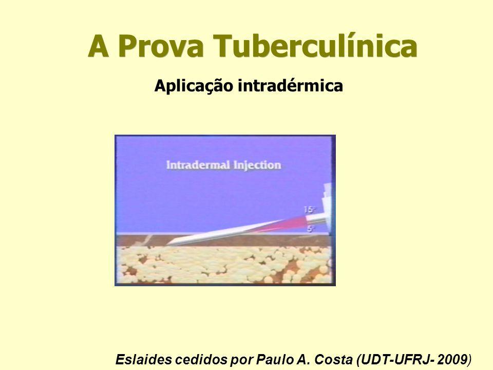 A Prova Tuberculínica Aplicação intradérmica Eslaides cedidos por Paulo A. Costa (UDT-UFRJ- 2009)