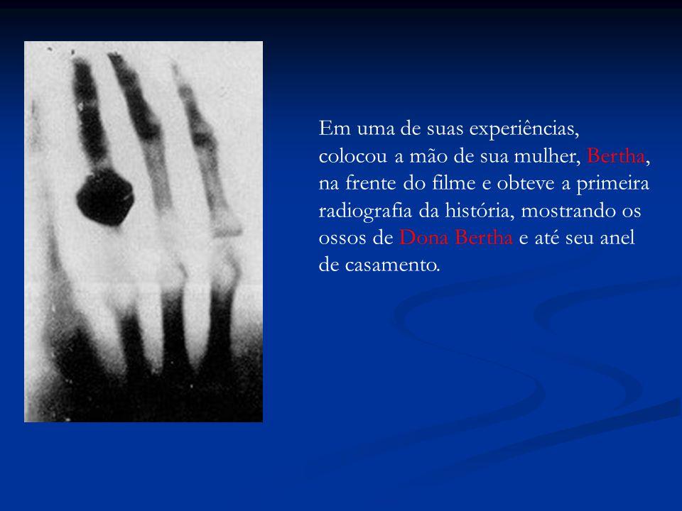 Em uma de suas experiências, colocou a mão de sua mulher, Bertha, na frente do filme e obteve a primeira radiografia da história, mostrando os ossos de Dona Bertha e até seu anel de casamento.