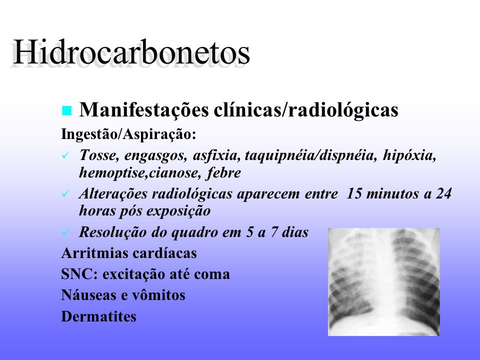 Hidrocarbonetos Manifestações clínicas/radiológicas Ingestão/Aspiração: Tosse, engasgos, asfixia, taquipnéia/dispnéia, hipóxia, hemoptise,cianose, feb