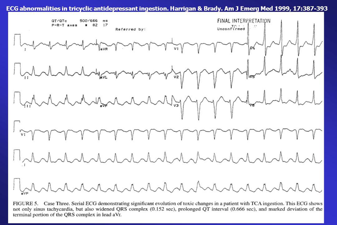 ECG abnormalities in tricyclic antidepressant ingestion. Harrigan & Brady. Am J Emerg Med 1999, 17:387-393