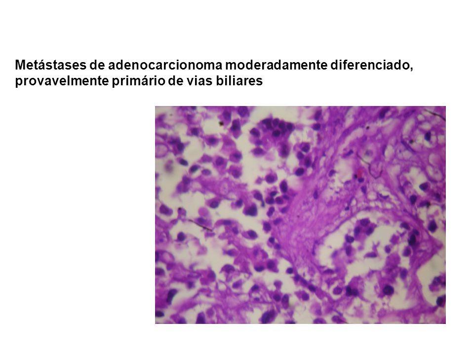 Metástases de adenocarcionoma moderadamente diferenciado, provavelmente primário de vias biliares