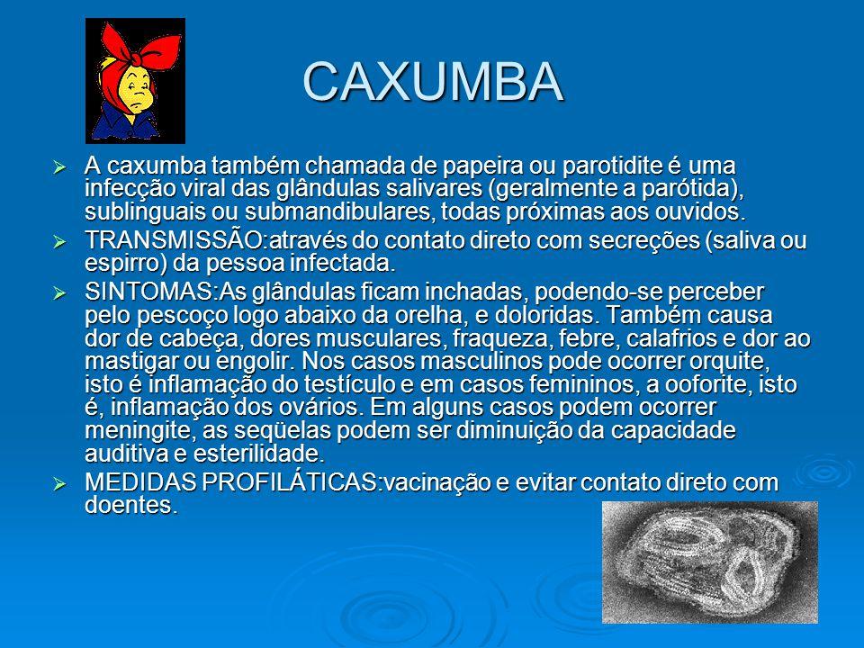 CAXUMBA  A caxumba também chamada de papeira ou parotidite é uma infecção viral das glândulas salivares (geralmente a parótida), sublinguais ou subma
