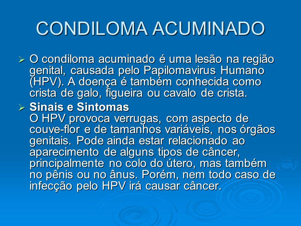 CONDILOMA ACUMINADO  O condiloma acuminado é uma lesão na região genital, causada pelo Papilomavirus Humano (HPV). A doença é também conhecida como c