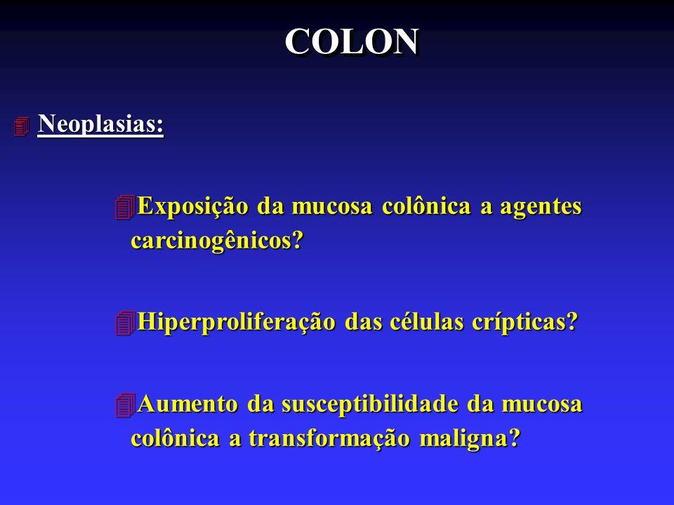 COLONCOLON 4 Neoplasias: 4Exposição da mucosa colônica a agentes carcinogênicos? 4Hiperproliferação das células crípticas? 4Aumento da susceptibilidad
