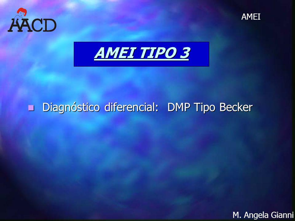 M. Angela Gianni AMEI AMEI TIPO 3 Diagnóstico diferencial: DMP Tipo Becker Diagnóstico diferencial: DMP Tipo Becker