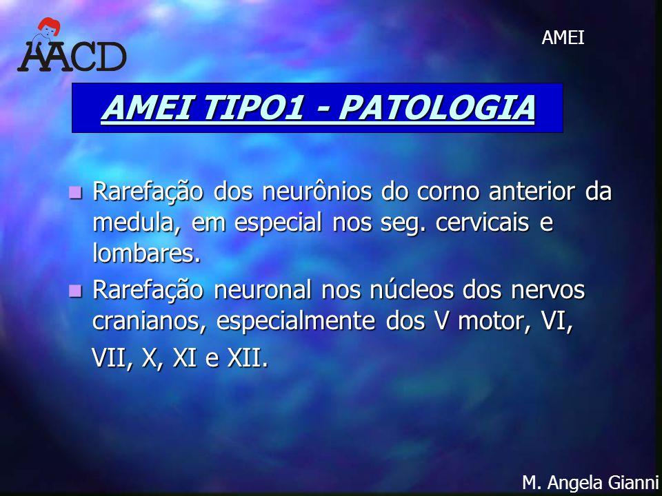 M. Angela Gianni AMEI AMEI TIPO1 - PATOLOGIA Rarefação dos neurônios do corno anterior da medula, em especial nos seg. cervicais e lombares. Rarefação